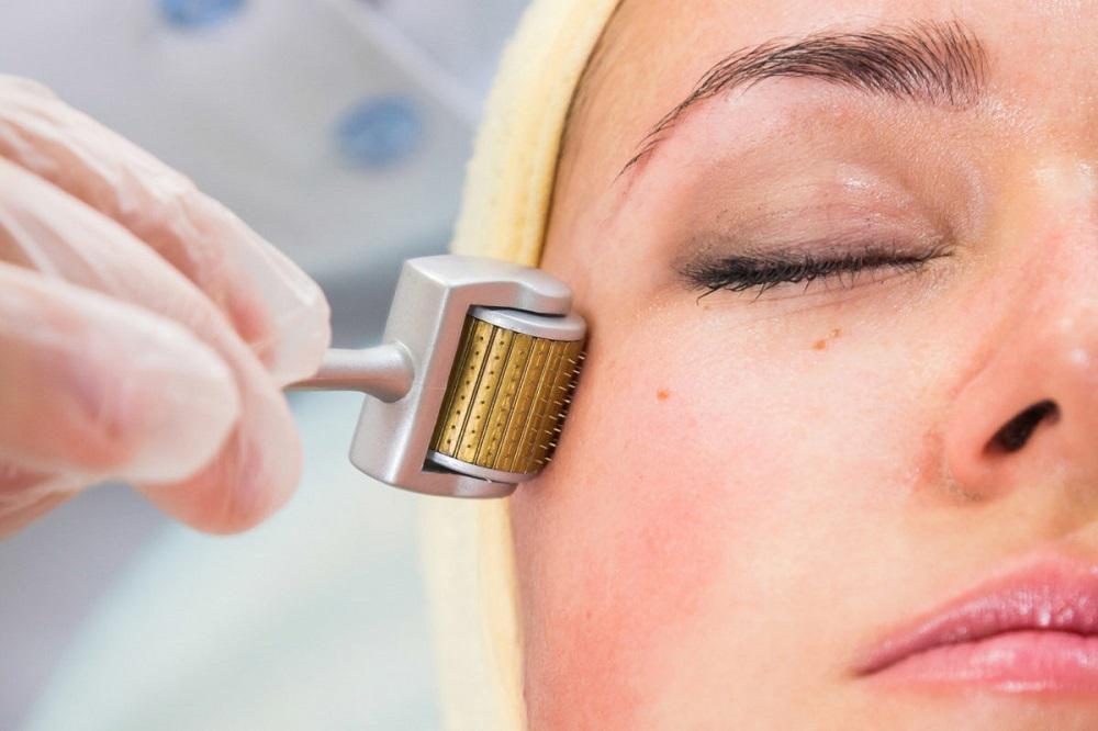 tế bào gốc trị sẹo lõm