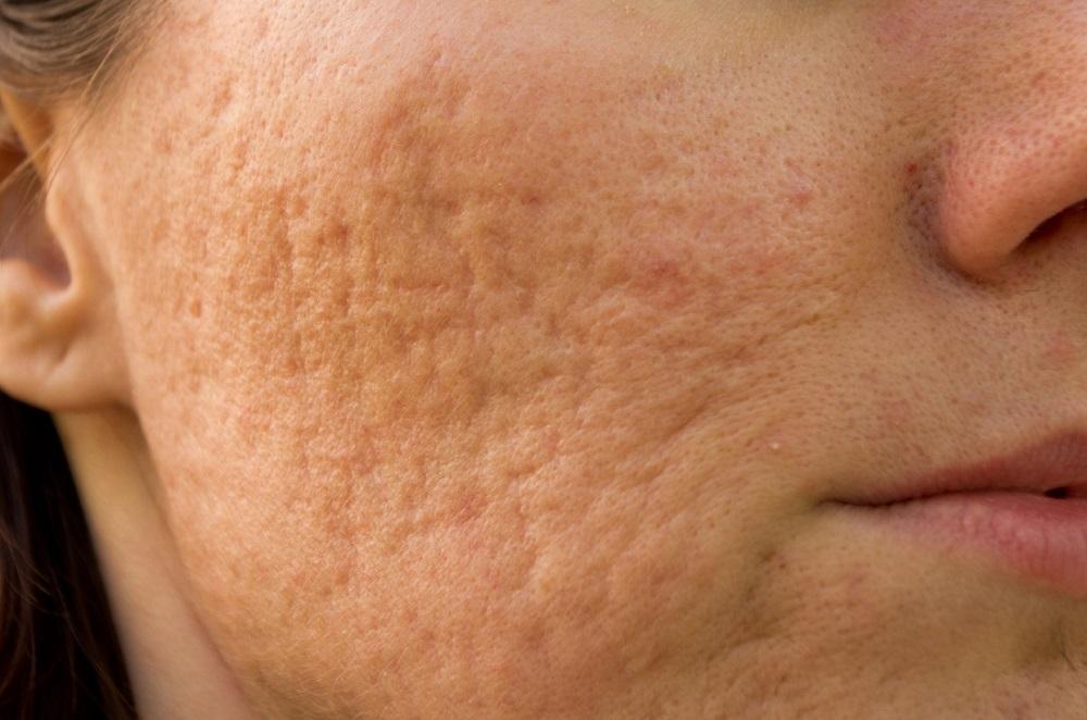 tế bào gốc trị sẹo rỗ